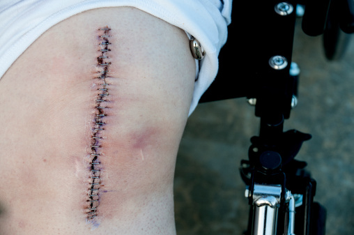 BONE CEMENT FAILURES IN KNEE REPLACEMENTS COULD HARM VETERANS